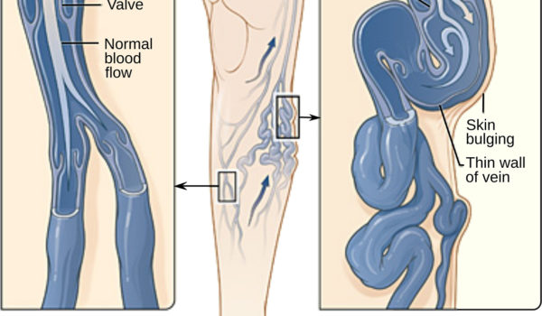 varicose vein forms in a leg