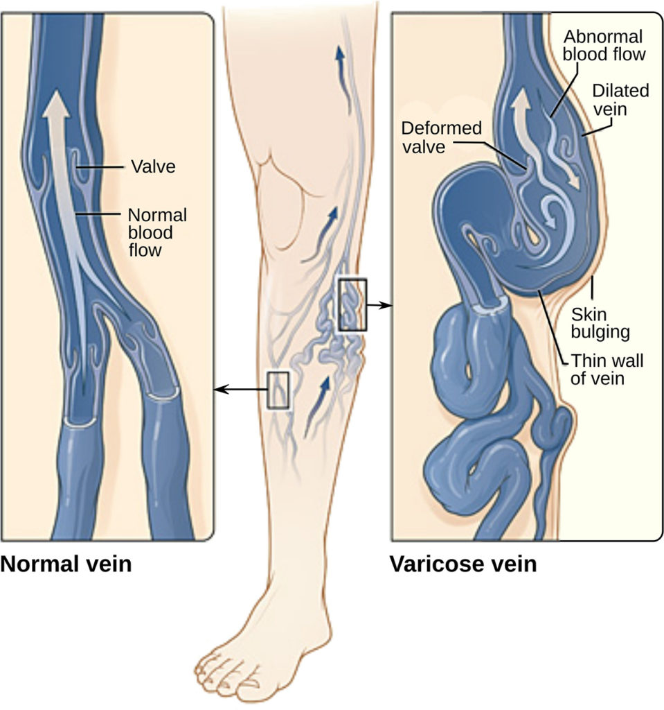 Spider veins on legs natural treatment with effective results